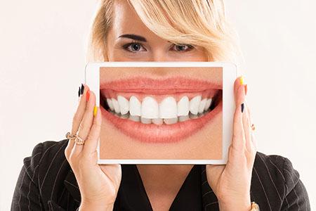 Uśmiech dziąsłowy gummy smile